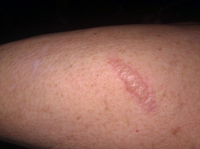 Bullet Wound Scar Arm | www.pixshark.com - Images ...